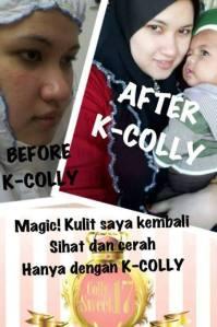 k colly sweet 17 berkesan mengeringkan jerawat dan menghilangkan parut
