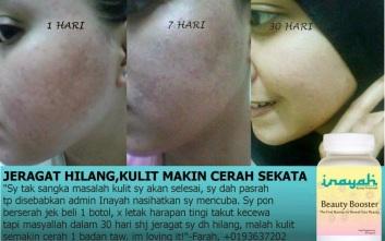 testimoni inayah beauty booster hilangkan jeragat cerahkan kulit